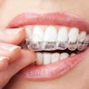 how to straighten teeth fast 4