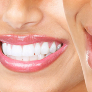 is it time to straighten your teeth 2
