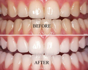 Is teeth whitening bad for you