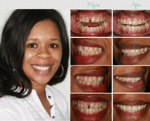 porcelain crowns in south africa