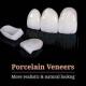 types of dental veneers