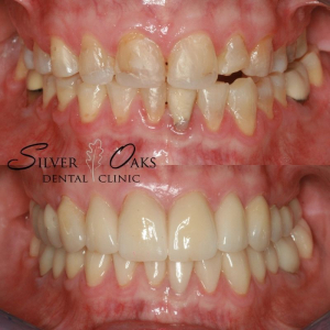 straighten teeth without braces 1