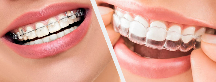 The quickest way to straighten your teeth