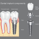 types of dental implant manufacturers