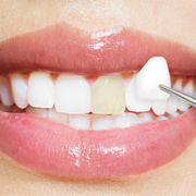 what are dental veneers