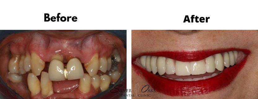 What can dental implants do for me