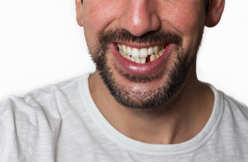 what is the best way to replace my missing teeth 2