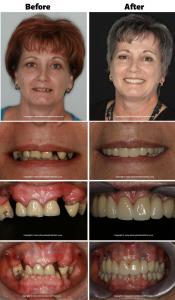 when should i consider dental implants 4