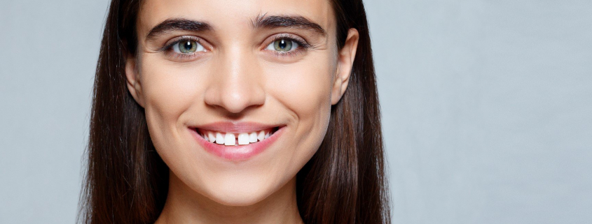 women with gapped teeth